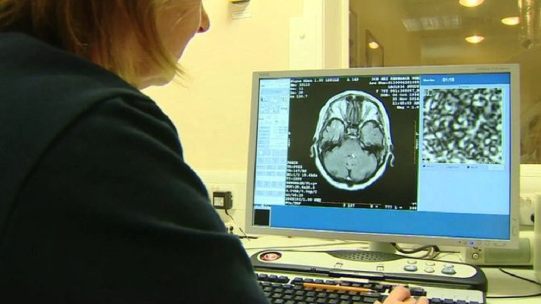 Изучение активности головного мозга