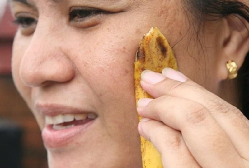 Как избавиться от веснушек и пигментных пятен кожурой банана?