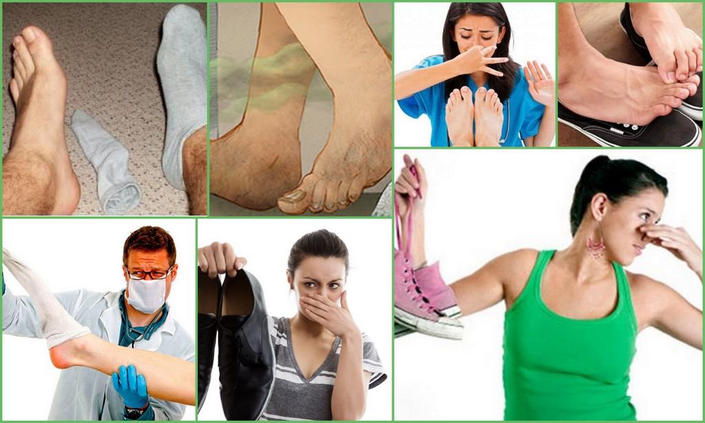 Почему пахнет от ног и обуви – самые распространенные причины